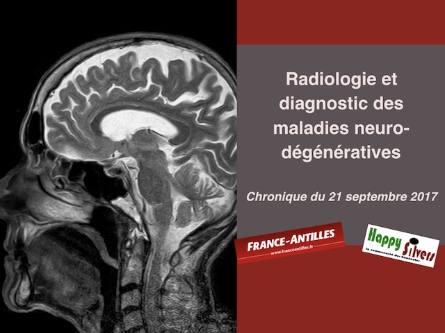 chronique du 21 septembre 2017 diagnostic
