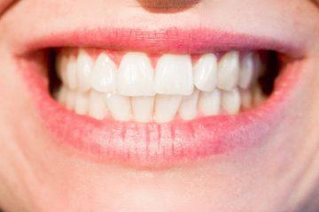 Réparer sa prothèse dentaire soi-même, c'est possible !