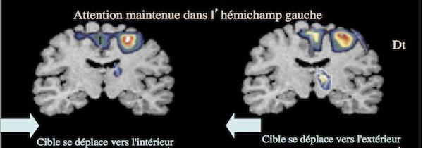 zones du cerveau mémoire