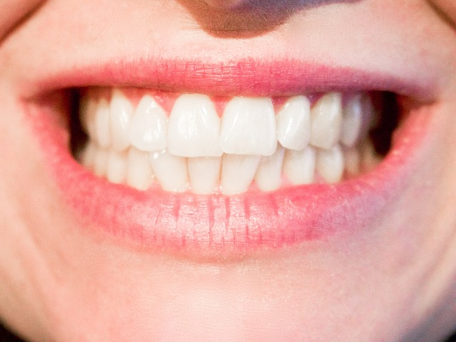 dents prothese dentier