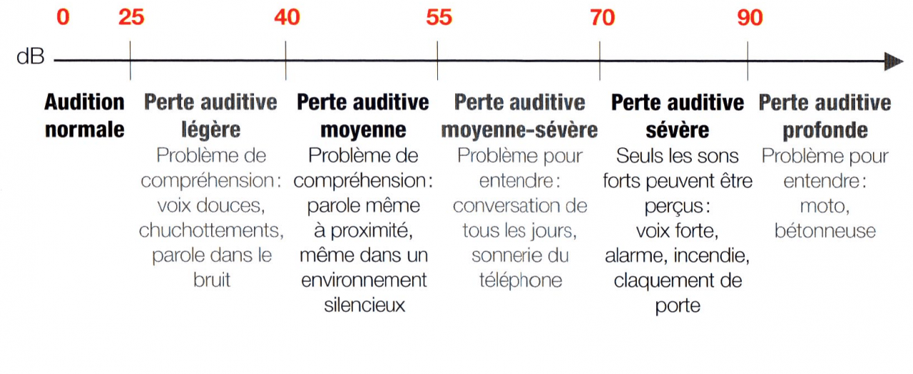les-differents-degres-de-perte-auditive